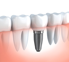 dental implants image